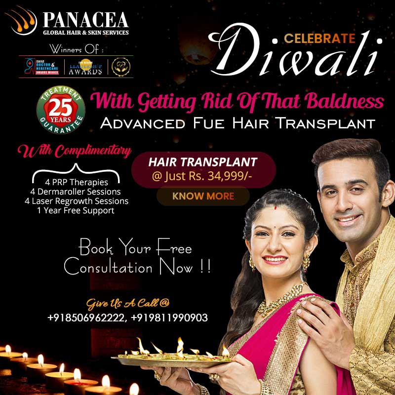 Hair Transplant diwali offer