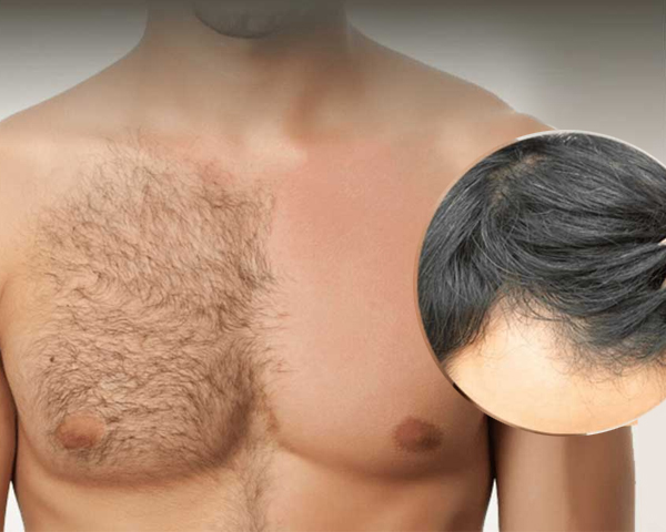 Body Hair Transplant in Krishna Market