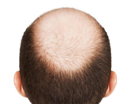 FUE Hair Transplant in Desh Bandhu Gupta Road