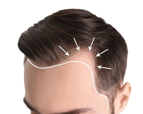 Hair Transplant Repair in Panchsheel