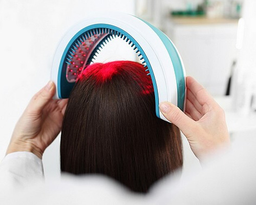 Laser Hair Loss Treatment in Sukhdev Vihar