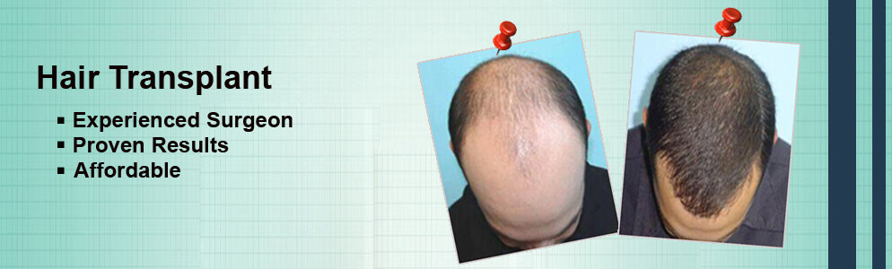 How to choose the Right Hair Transplant Doctor