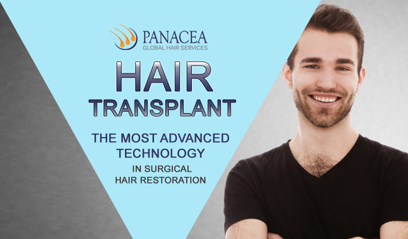 All You Need To Know About Hair Transplant Expenditure