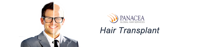 Basics of Hair Transplant Explained