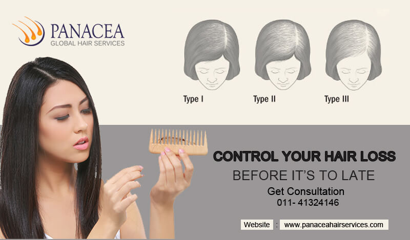 Bringing Changes in Your Lifestyle To Counter Hair Fall Issues