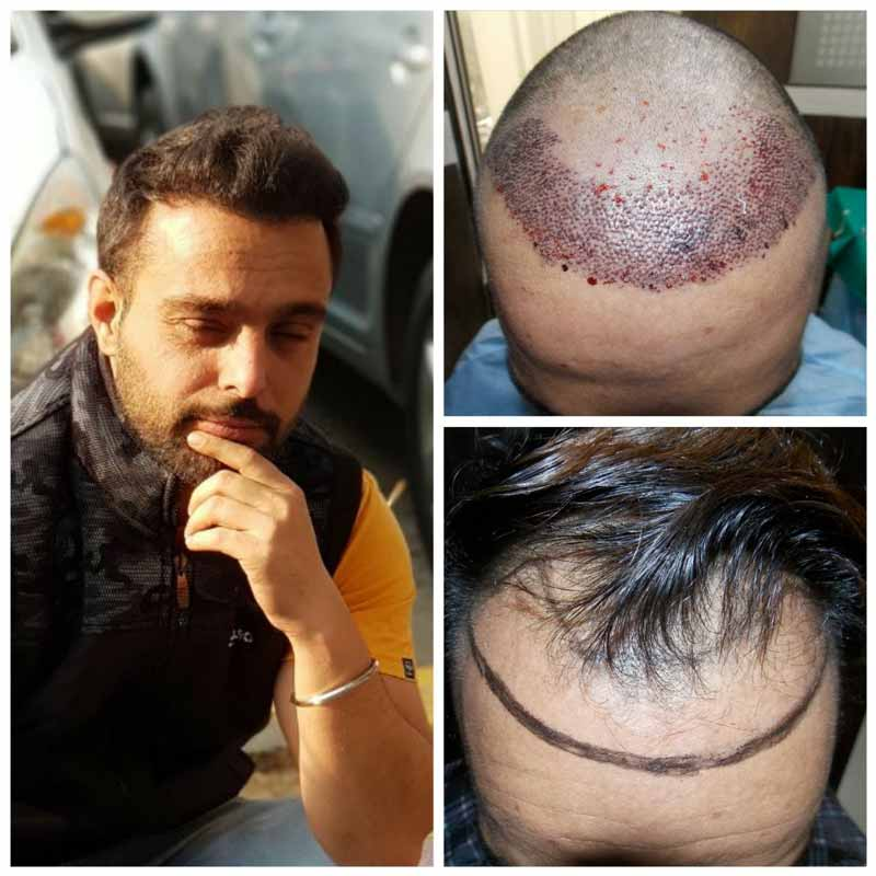 Common queries about different hair transplant treatment