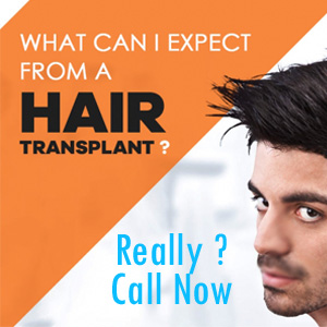 Do not Let Down Your Spirits Due To Hair Troubles Consult the Experts