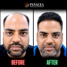 GET A COMPLETE IDEA OF HAIR TRANSPLANT COST IN DELHI