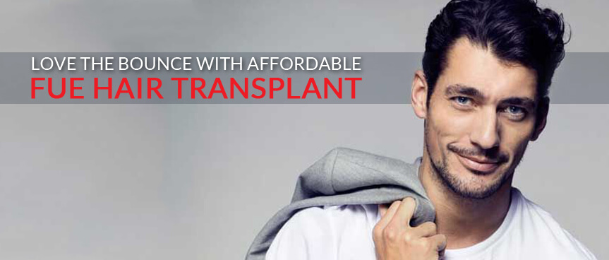 Get the Full Coverage When It Comes to Hair Transplant