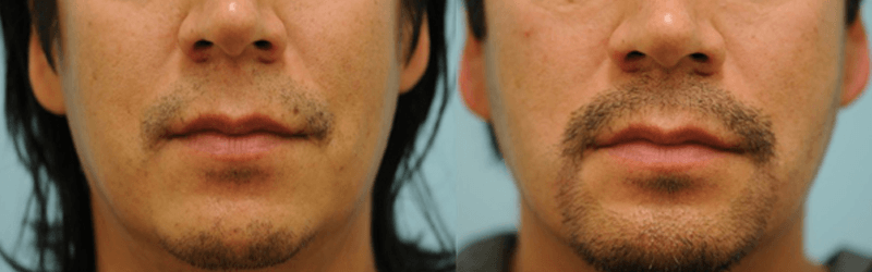 Hair Restoration on the Face