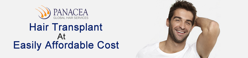 Important Factors To Determine The Hair Transplant Cost