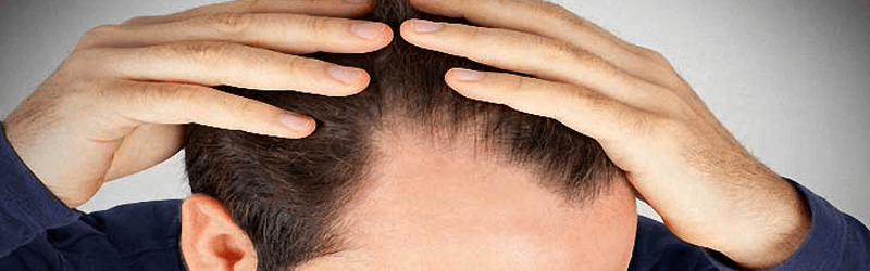 Is hair transplant right solution for your problem