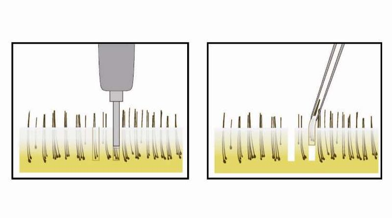 Know All About FUE Hair Transplant