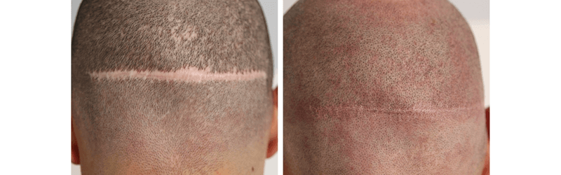 Micro mini grafts in a hair transplant