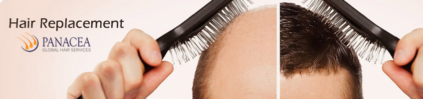 Modern Hair Replacement Methods for Treating Baldness