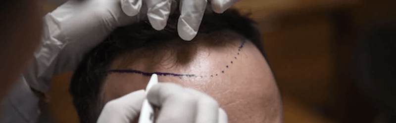 Modern hair transplant techniques have made it way easier than ever