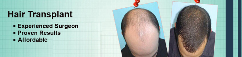 Restore Your Hairline With The Best Hair Transplant Surgeon