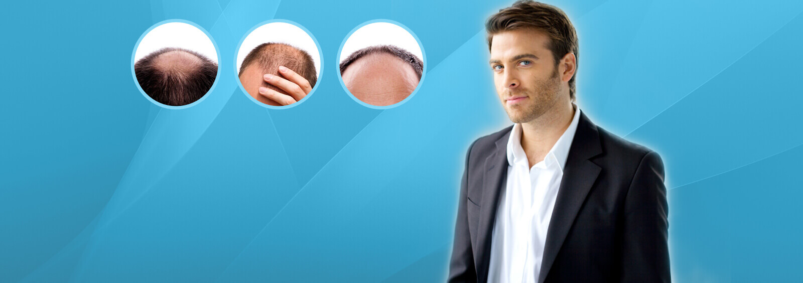 Things To Consider Before Entering into Any Hair Transplant Clinic