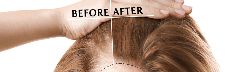 Useful tips before going to finalize a hair transplant