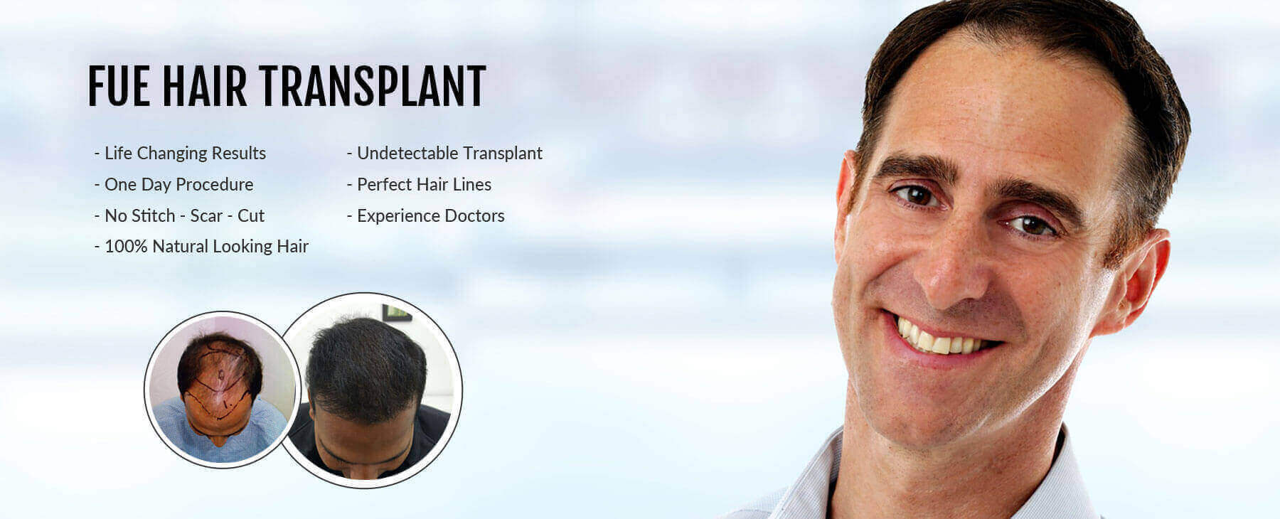 What Should You Know About FUE Hair Transplant in Delhi