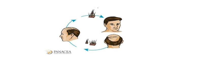 What results to expect out of a hair transplant