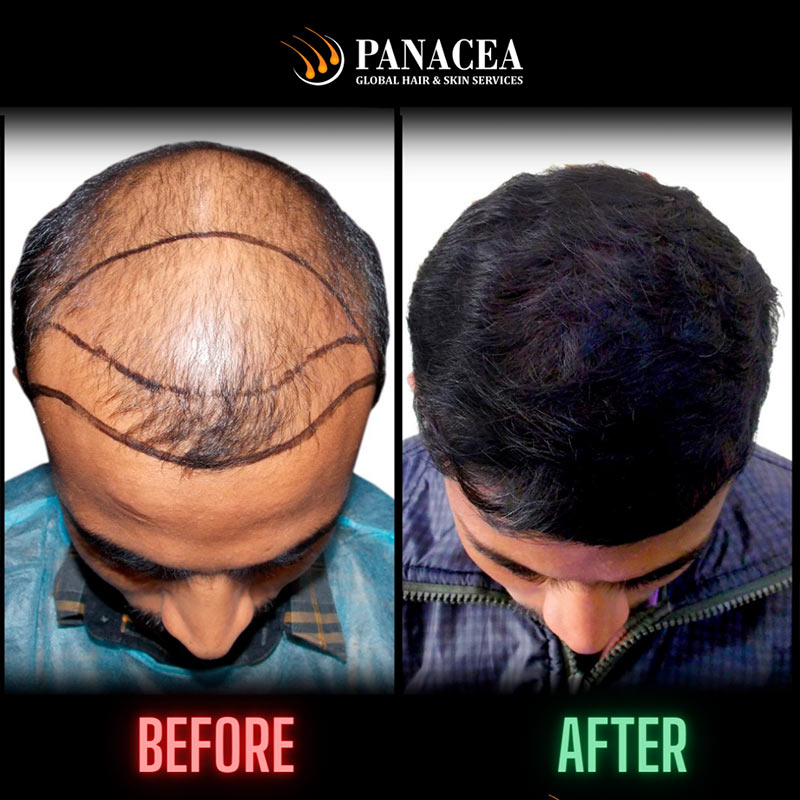 YOUR HAIR LOSS IS TEMPORARY OR PERMANENT