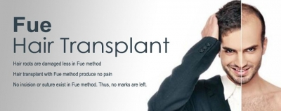 FUE Hair Transplant - The Insider's Secrets You Must Know Before A Implant