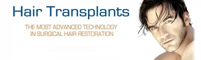Hair Transplant: A Great Option To Get Back The Hair