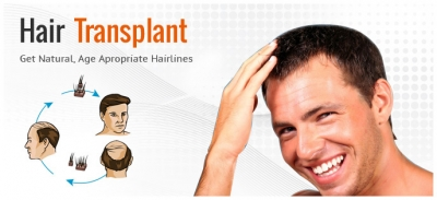 Advantages of Hair Transplant