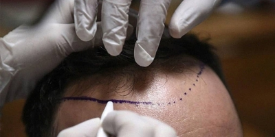 All about The Hair Transplant Cost