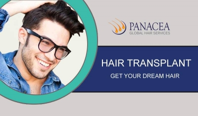 Avail Hair Transplant in Delhi for a Permanent Solution to Baldness