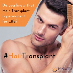 Commonly Asked Questions about Hair Transplant