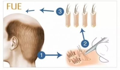 FUE and FUT style Hair Transplants Clinic in Delhi