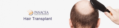 Facts You Need to Know About Hair Transplant