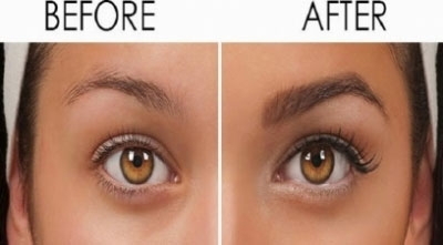 Get the solution for thinning of eyebrows