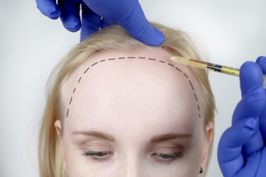 HAIR TRANSPLANT CLINICS EXCLUSIVE VS COSMETIC CARE CLINICS