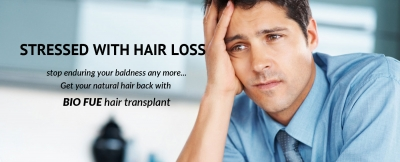 Hair Loss is No More a Nightmare