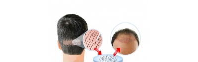 Hair Loss the Talk of Yesterday