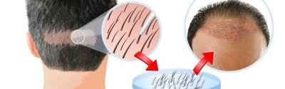 Hair Transplant - A Permanent Solution for Hair Loss