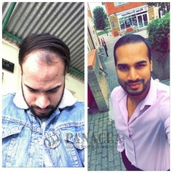 Hair Transplant in COVID 19 at Panacea Global Hair