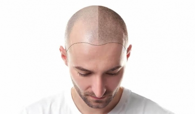 How a hair loss treatment can help you in battling baldness
