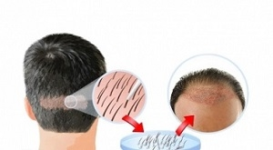 Know About Most Pocket-Friendly Hair Transplant Cost in Gurgaon