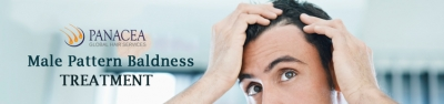 Know the Signs of Balding and Prevent Hair Fall at Early Stage