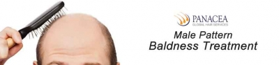 Let Your Baldness Remain In The Pages Of History
