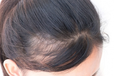 SYMPTOMS AND EFFECTS OF PCOD ON HAIR AND BODY
