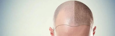 Solve all your queries regarding a hair transplant