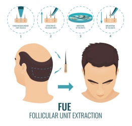 The Dynamics of Follicular Unit Extraction Understanding the Process
