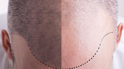 Things to keep in mind for hair transplant