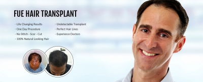 Which FUE Hair Transplant Clinic in Delhi Can Give Full Coverage