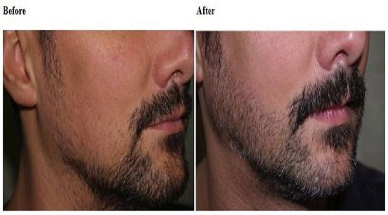 Beard Hair Transplant in Jama Masjid
